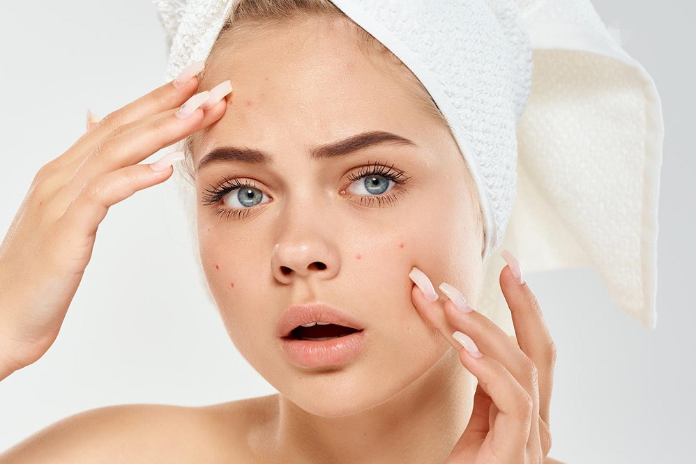 6 astuces pour combattre l'acné kystique