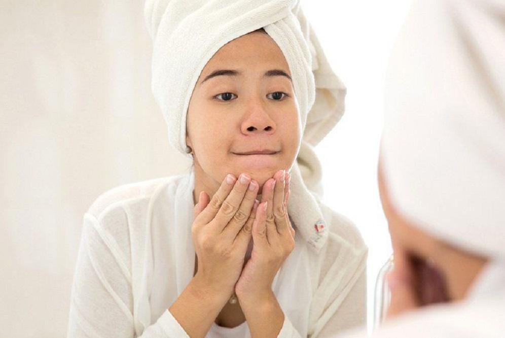 6 remèdes contre l'acné étonnamment efficaces pour les adolescentes