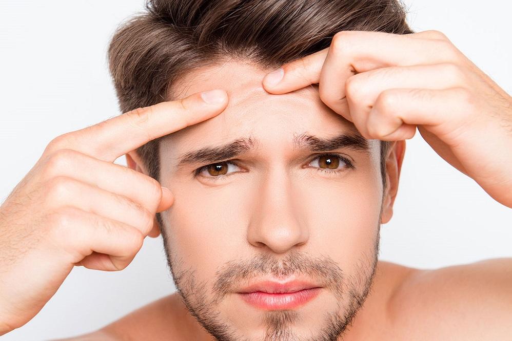 TOP 5 des solutions contre l'acné qui ont fait leurs preuves