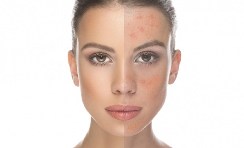 10 astuces pour obtenir une peau claire et éclatante