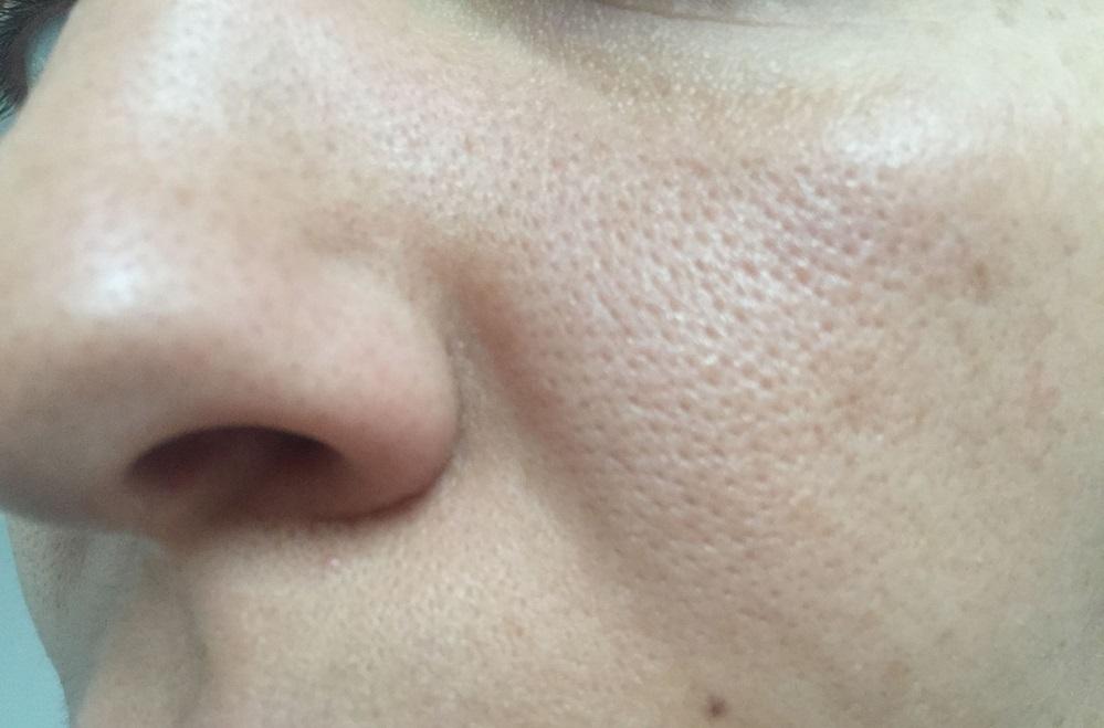 12 remèdes naturels contre les pores dilatés