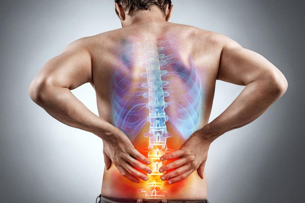 3 plantes et vitamines pour soulager les maux de dos