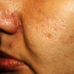 4 masques faits-maison pour les cicatrices d'acné