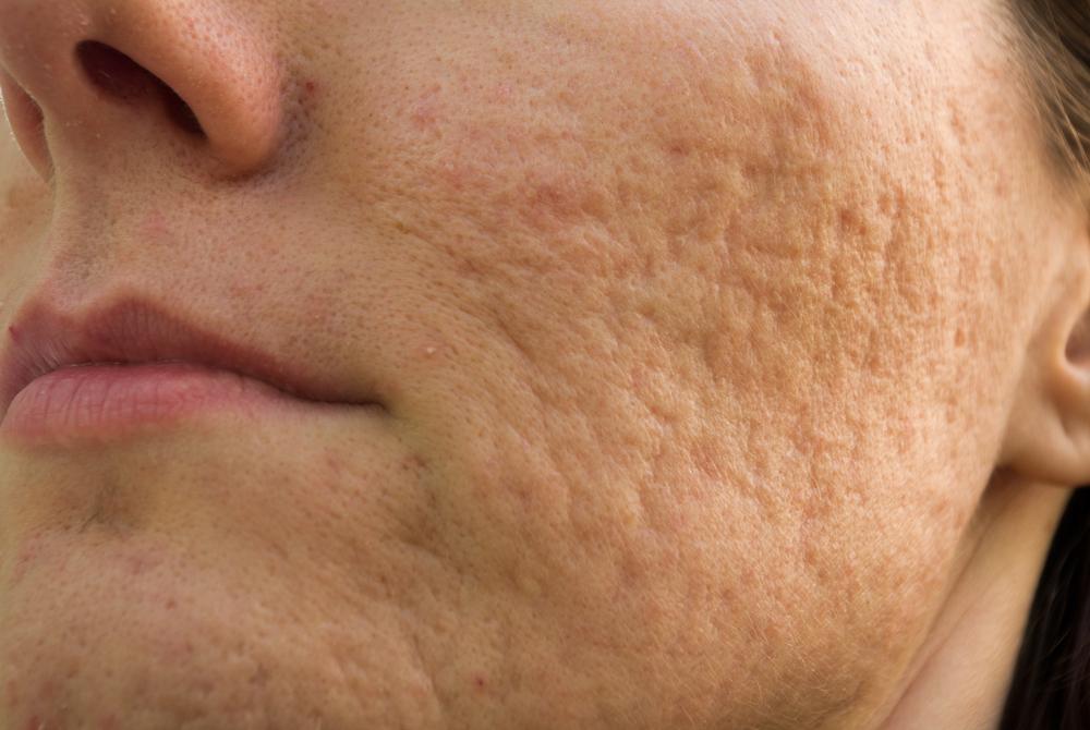4 masques visage pour se débarrasser des cicatrices d'acné