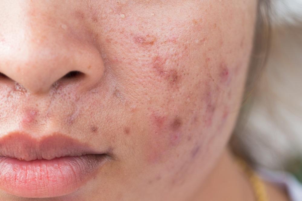 5 étapes pour se débarrasser de l'acné