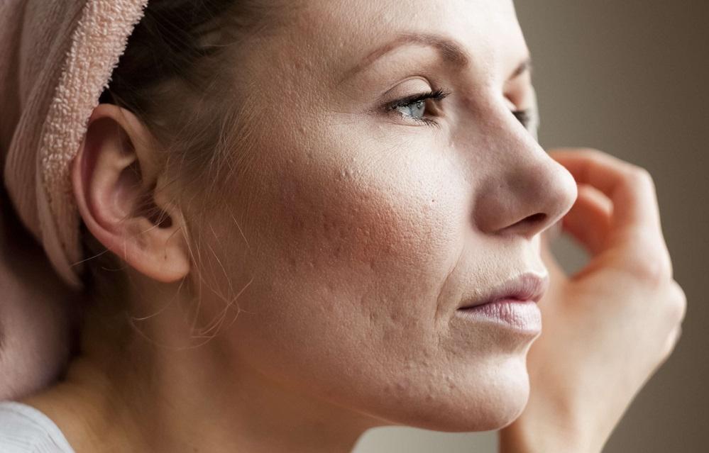 5 remèdes pour éliminer les cicatrices d'acné rapidement
