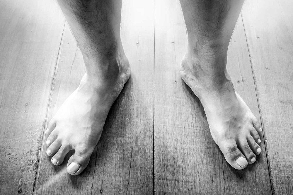 5 remèdes pour améliorer la mauvaise circulation dans les jambes