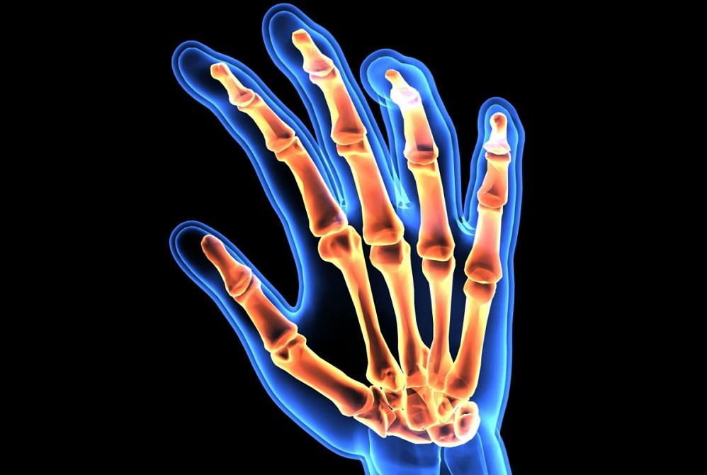 Les 5 meilleurs suppléments pour l'arthrite