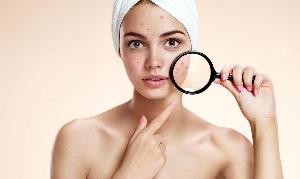 5 trucs et astuces pour neutraliser votre acné prouvés par la science