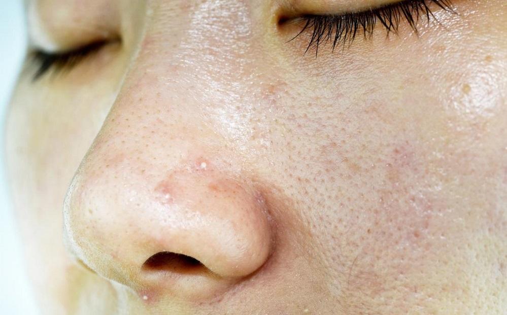 6 conseils pour hydrater la peau grasse sans obstruer les pores