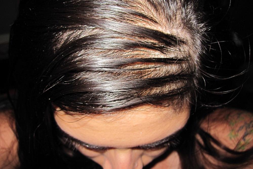 7 remèdes naturels contre les cheveux gras
