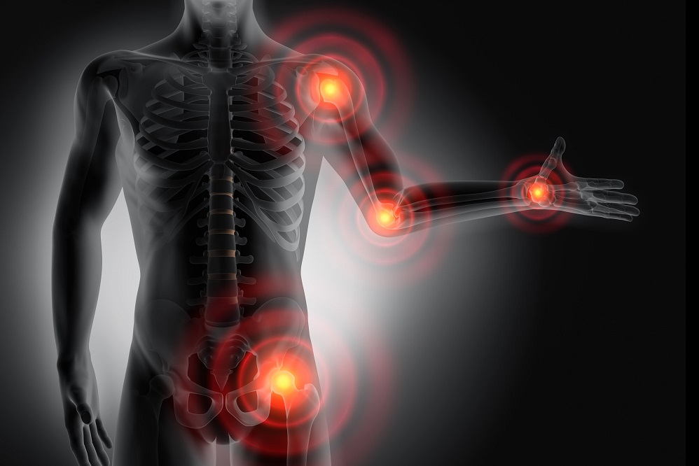 Bienfaits de la chondroïtine pour l'arthrose et les douleurs articulaires