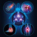La thérapie par cellules souches et ses bienfaits : pour les douleurs articulaires, les maladies cardiaques et même la maladie d'Alzheimer