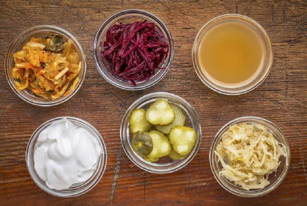 Ces excellents aliments probiotiques que vous devriez manger