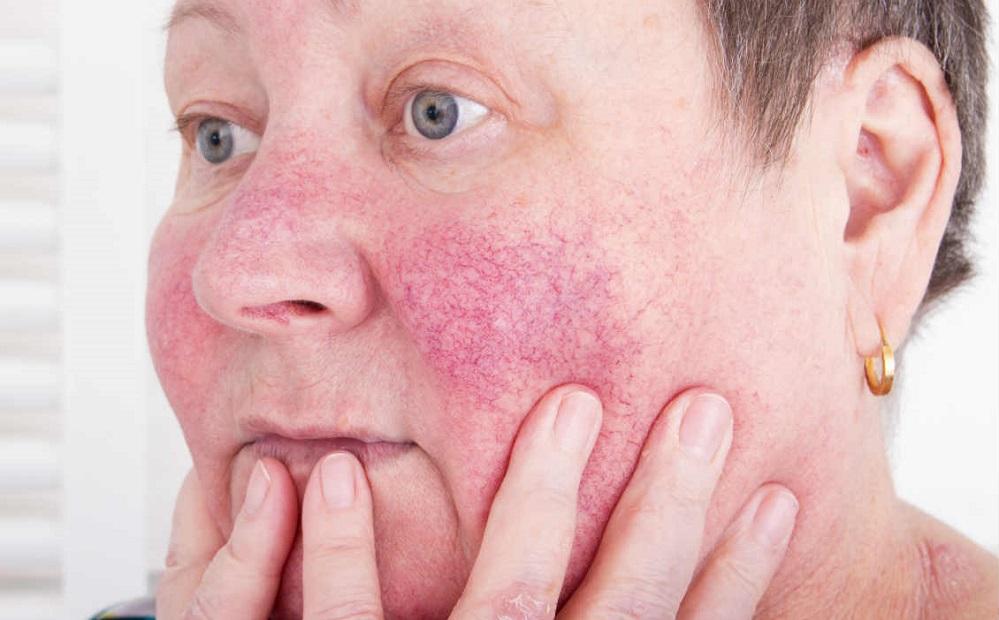 Comment se débarrasser des rougeurs sur le visage ?