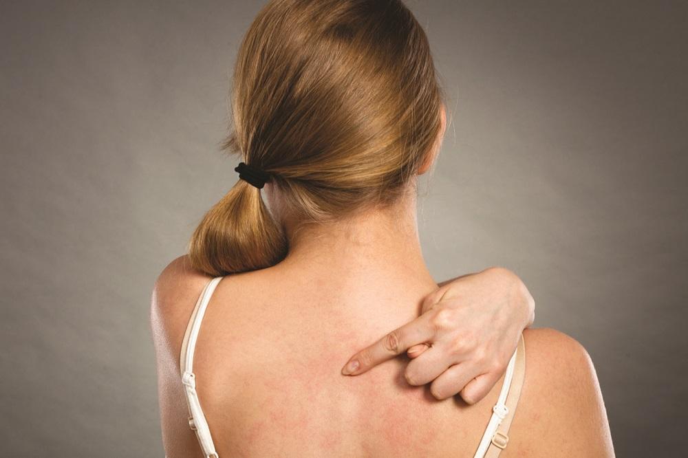 Comment traiter naturellement la dermatite ?