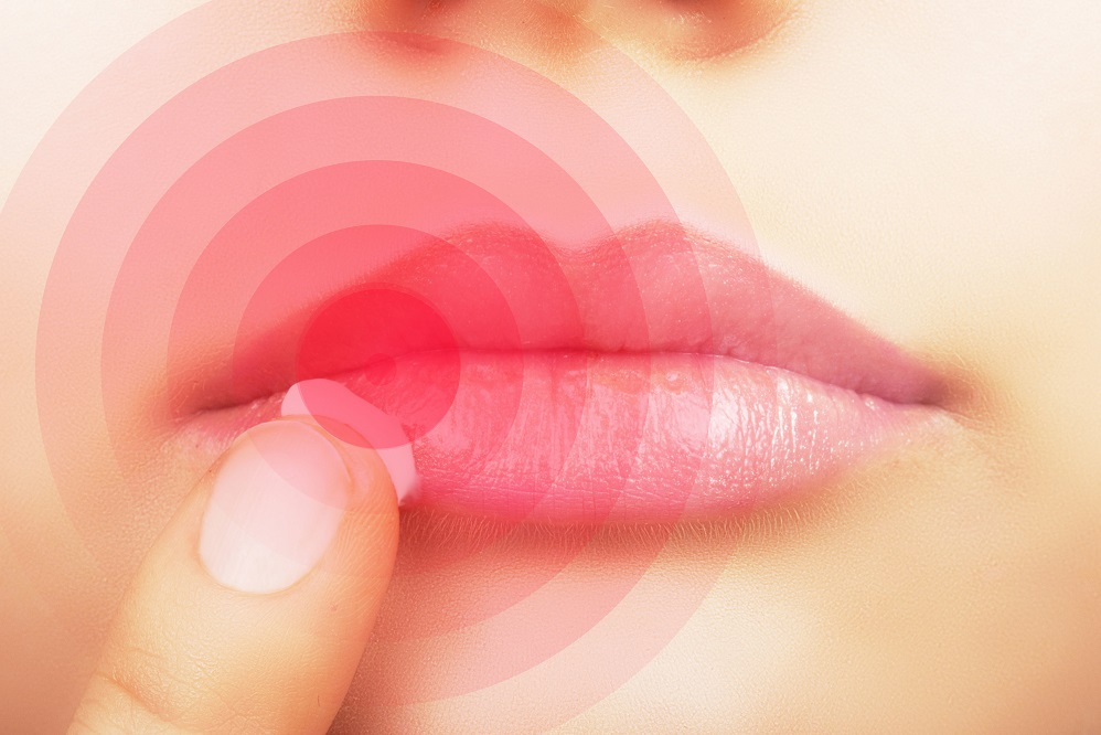 La lysine pour traiter les boutons de fièvre