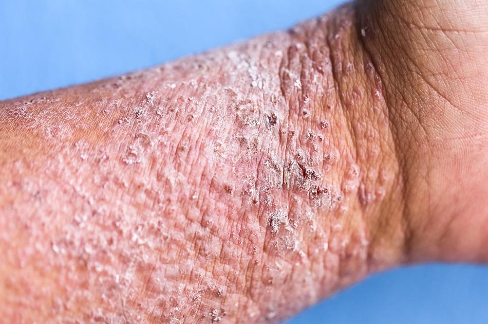 La vitamine D réduit-elle la sévérité de la dermatite atopique ?