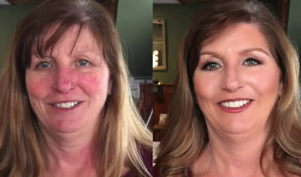 Les 5 meilleurs produits de maquillage pour la rosacée – Avis & meilleurs choix