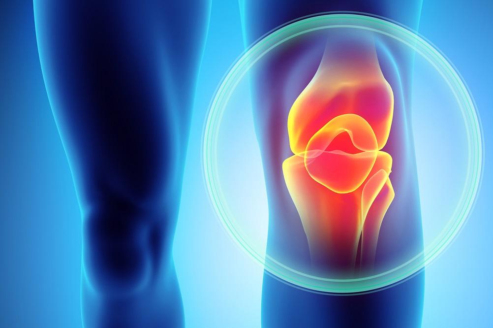 Les 3 meilleures vitamines pour le mal de genou