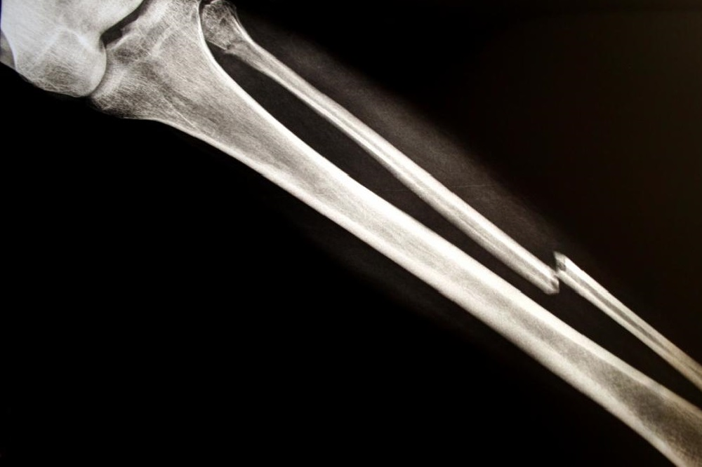 Les 5 meilleurs suppléments pour la guérison des os
