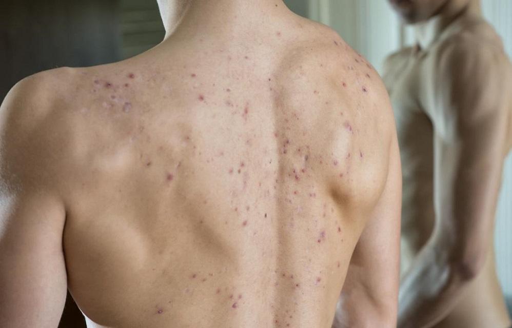 5 remèdes contre l'acné du dos