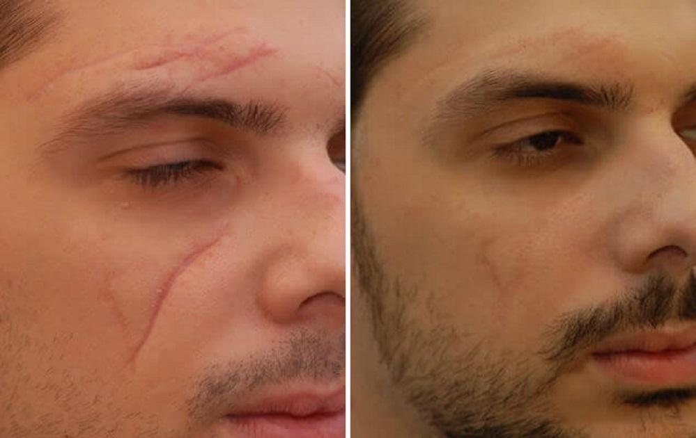 Les 5 meilleures crèmes pour enlever les cicatrices – Avis & meilleurs choix