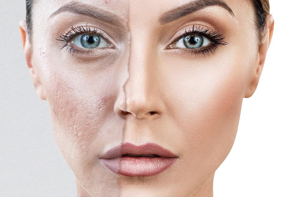 nouvelle qualité choisir véritable prix raisonnable Les 5 meilleurs fonds de teint pour masquer l'acné – Avis et ...