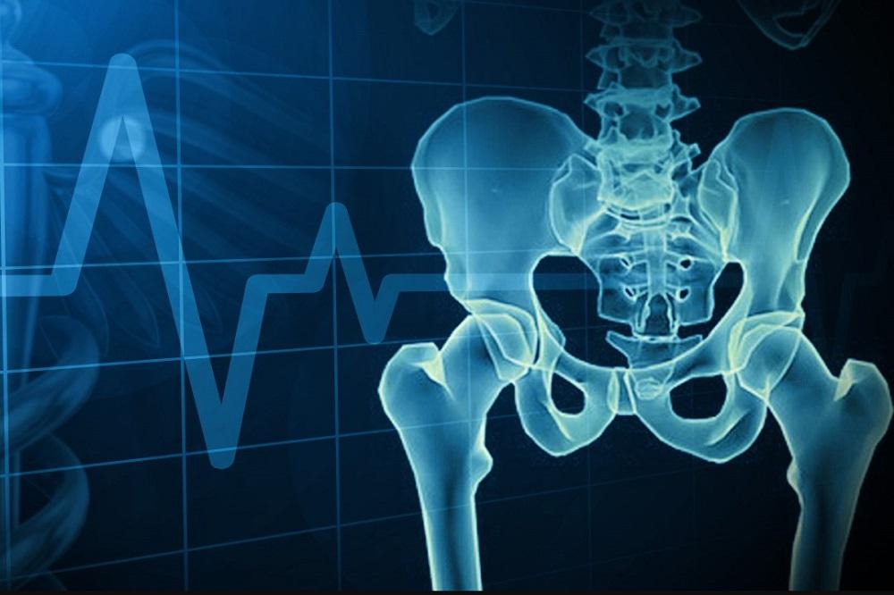 Santé des os - Affections courantes