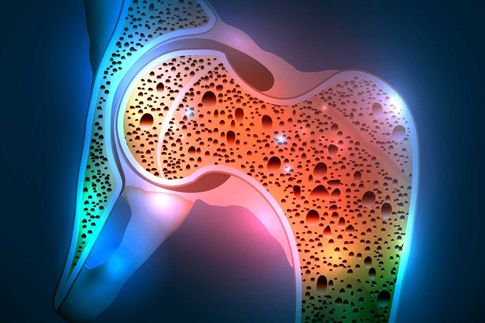 Stratégie nutritionnelle après une greffe de moelle osseuse