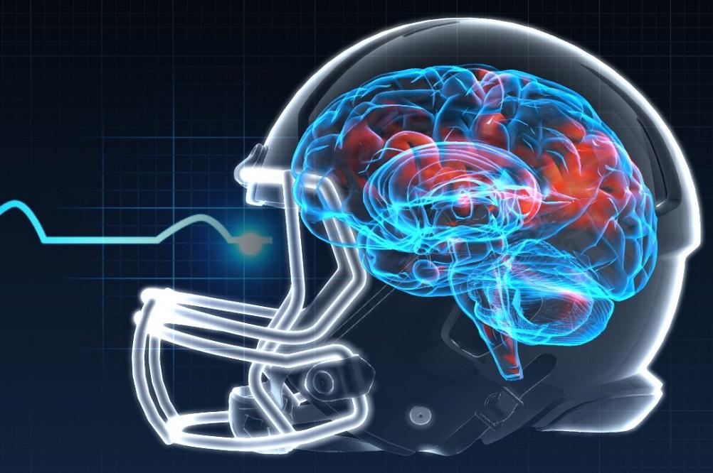 Stratégie nutritionnelle en cas de commotion cérébrale