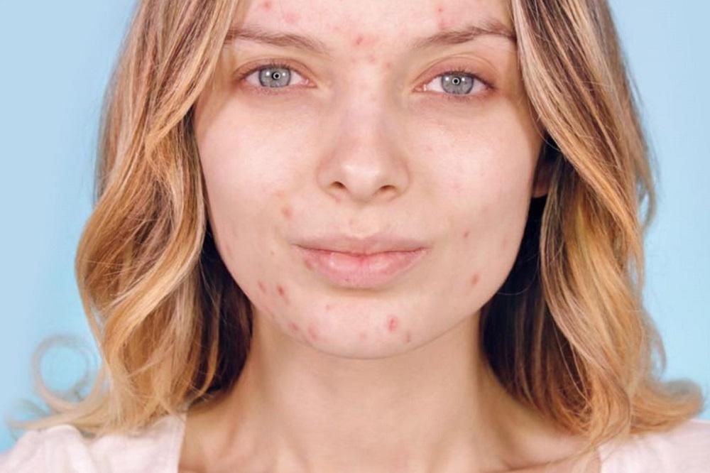 La vitamine B peut-elle traiter l'acné ?