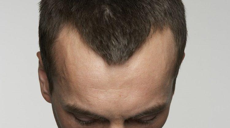 22 conseils pour vous aider à conserver vos cheveux