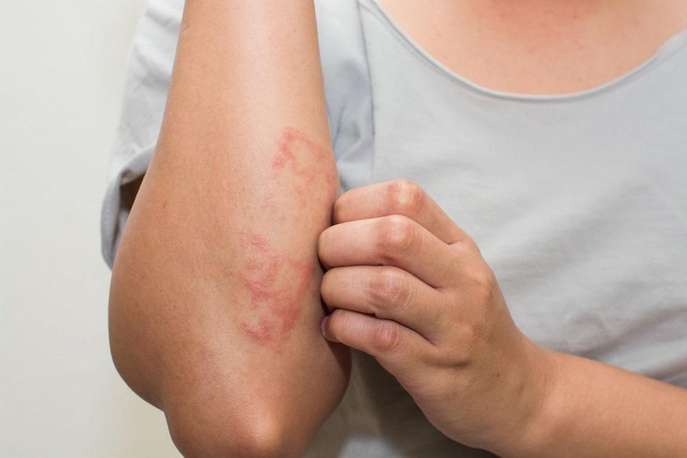 5 options lorsque l'eczéma sévère cesse de répondre au traitement