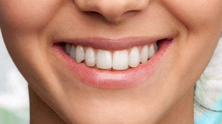 Comment enlever les taches de nicotine de vos dents ?