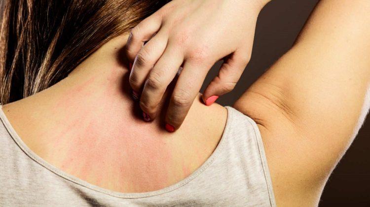 La chaleur peut-elle causer de l'urticaire ?