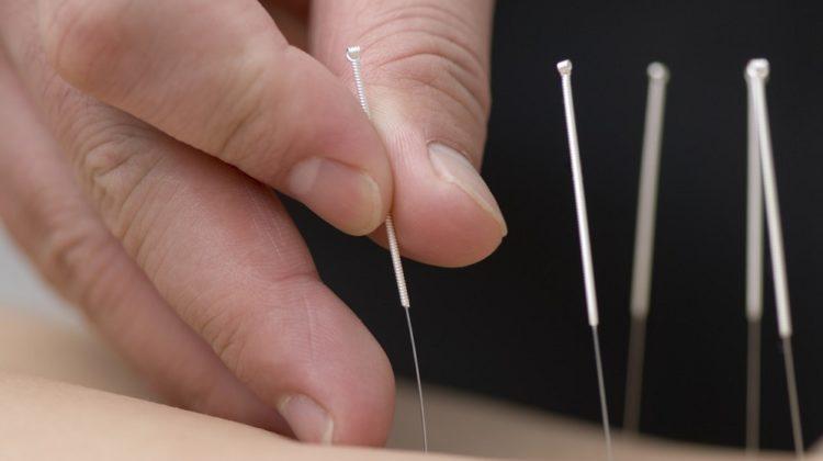 L'acupuncture peut-elle traiter les acouphènes ?
