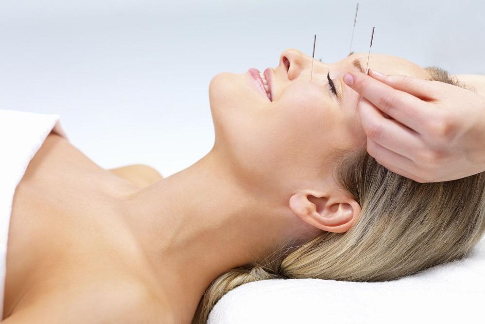 L'acupuncture pour les problèmes de sinus