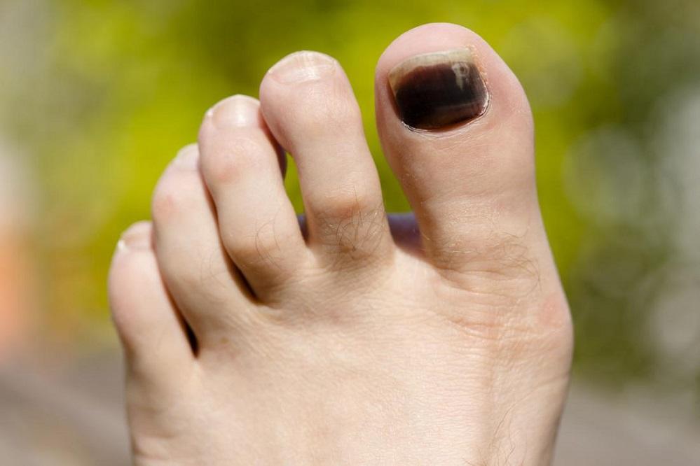 Pourquoi mes ongles de pieds changent-ils de couleur ?