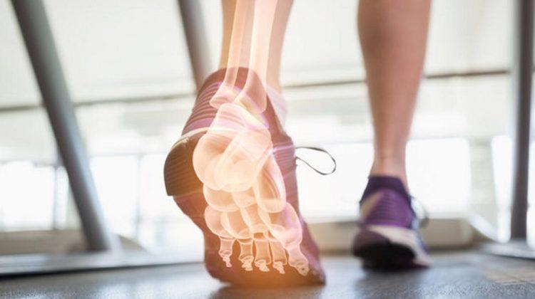 Que sont les orthèses et sont-elles efficaces ?