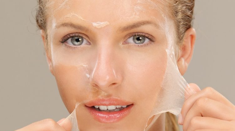Quel type de peeling chimique choisir pour les cicatrices d'acné ?
