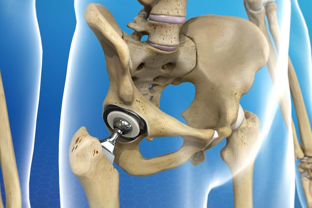 Remplacement de la hanche par voie antérieure : ce que vous devez savoir
