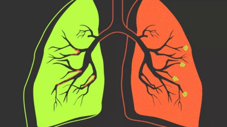 Humidificateurs pour la MPOC : respirez un air pur à la maison